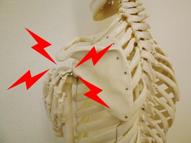 反復性肩関節脱臼での肩の痛み