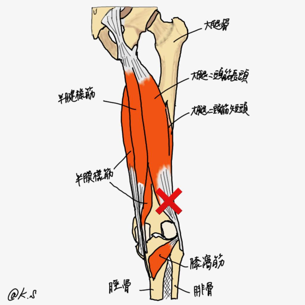着地時に膝を曲げた状態で剪断力を受ける大腿二頭筋