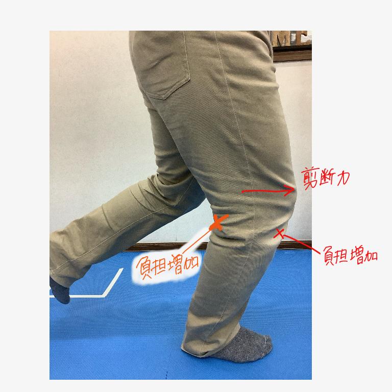 ランニング中に膝が曲がったまま着地したときに膝にかかる剪断力