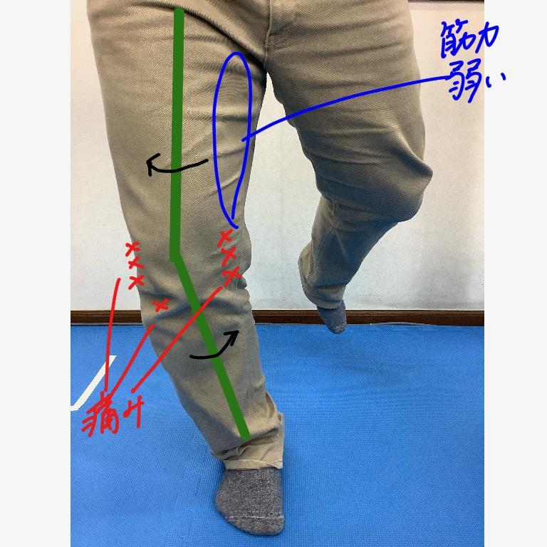 着地時に膝が外側に向いた状態にてかかる身体への負担
