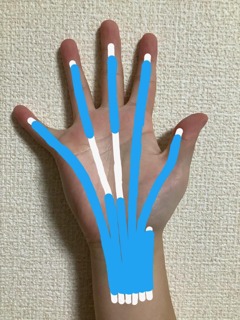 手掌側の腱鞘が母指・示指・小指まで伸びているパターン