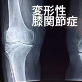 変形性膝関節症のレントゲン画像
