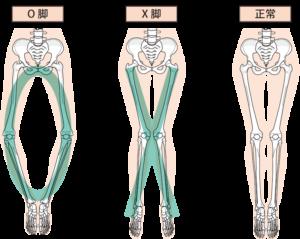変形性膝関節症に伴うO脚やX脚の変形