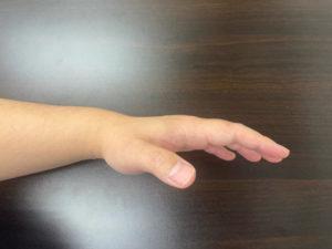 手指伸展を行っているが、手のひらの筋肉が硬く、完全伸展できない
