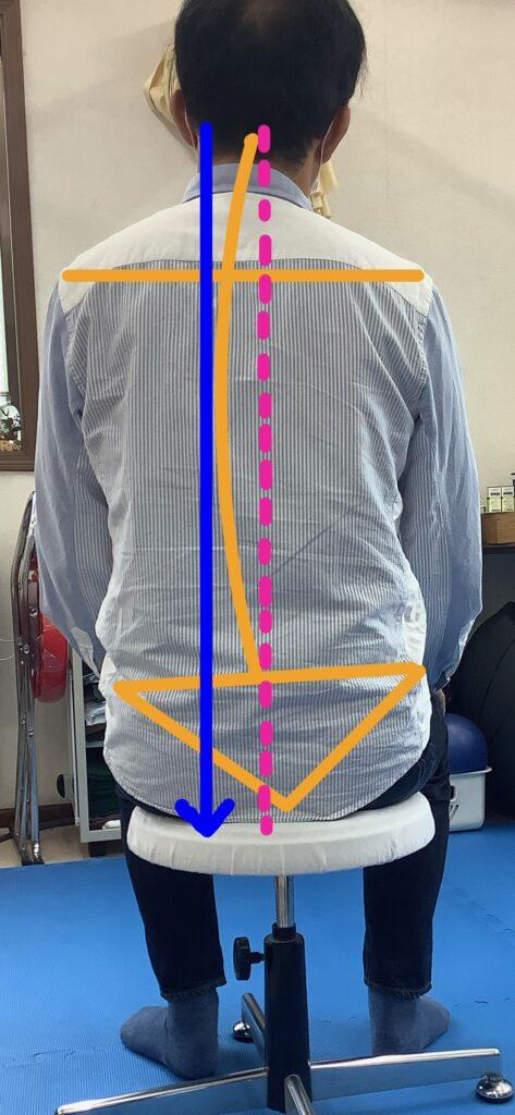 崩れている座位姿勢の例となる写真です。右肩が下がり骨盤に比べ上半身が左へずれてしまい、重心線が左のお尻にずれています。に