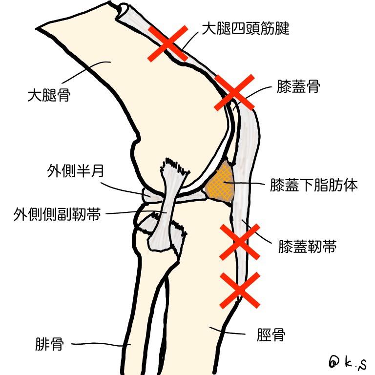 ジャンパー膝で痛みが出る部位を表しています。ジャンパー膝とは大腿四頭筋腱炎、大腿四頭筋腱付着部炎、膝蓋靱帯炎、膝蓋靭帯付着部炎の総称です。