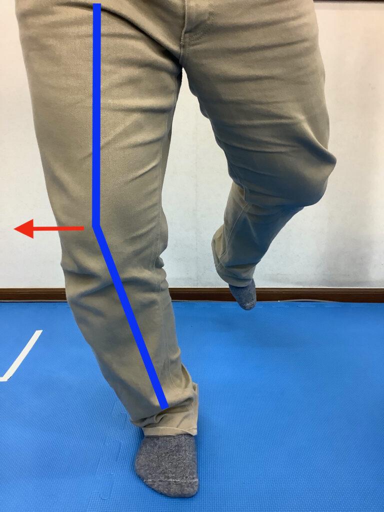 走ったりジャンプした際に、膝が外側に逃げてしまう場合、外側側副靭帯や腸脛靭帯に負担がかかりランナー膝と言われる腸脛靭帯炎が起こりやすくなります。