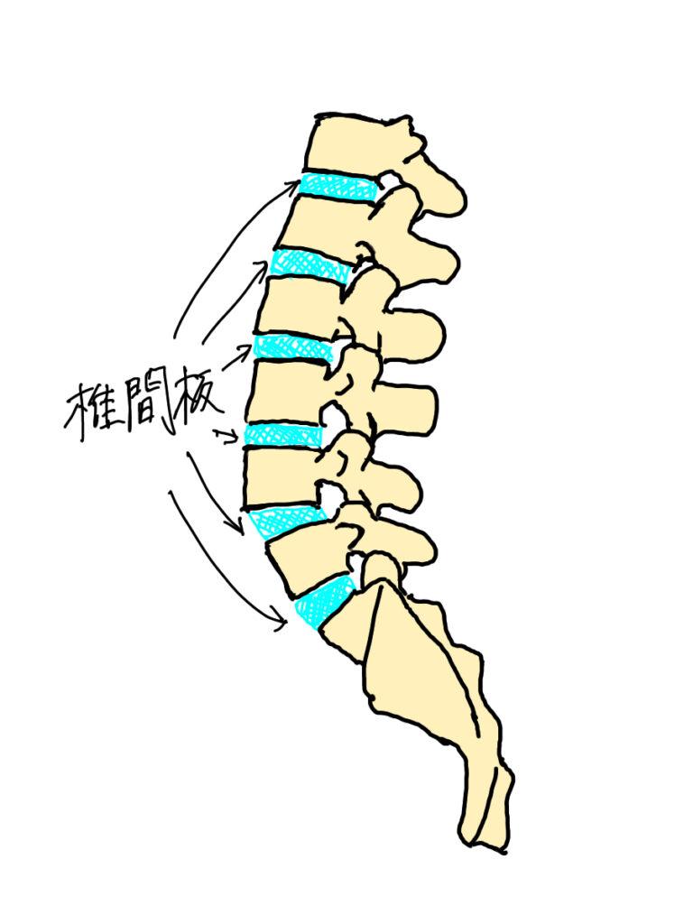 椎間板は髄核を有し、腰椎の前弯が増強されると髄核が後ろに押し出され椎間板ヘルニアのように飛び出してしまう