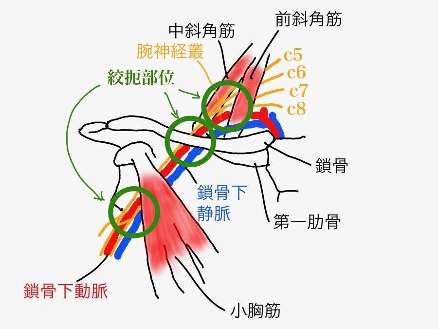 胸郭出口症候群は、首から鎖骨にかけて神経と血管の圧迫が起こることで脱力感やしびれが起こる